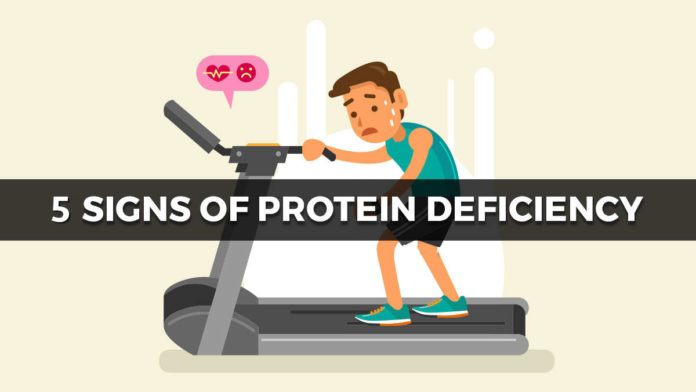 5 Signs That Prove You're Protein Deficient