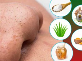 5 Effective Natural Ways To Get Rid Of Blackheads To Get Glowing Skin